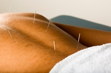 Acupuncture Can Help Fight Prostate Pain