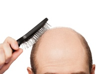 Going bald may be an indicator of greater health problems.