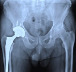 There are many known problems about metal-on-metal hip implants.