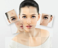 Dealing with acne naturally is possible.