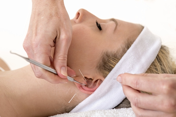 Ear Acupuncture for Weight Loss