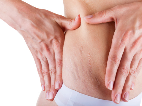 Stretch Marks for Youthful Skin