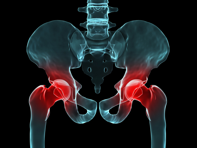 Take This Supplement Combination to Reduce Your Risk of Hip Fracture