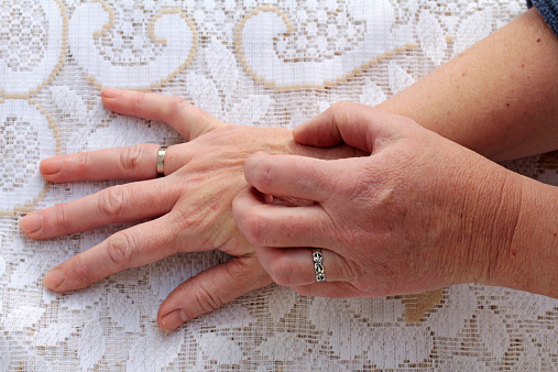 Alternative Treatments for Scleroderma
