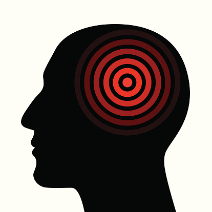 Migraines symptoms