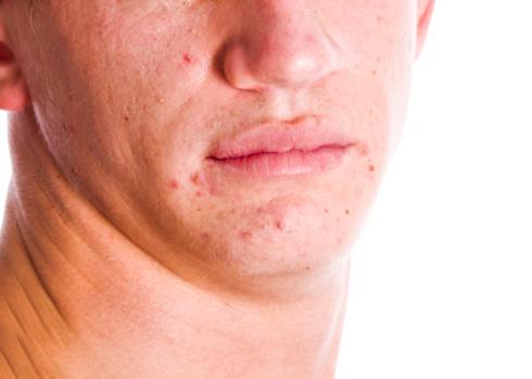 eHealth_June 26 2015_news_acne and vitamins