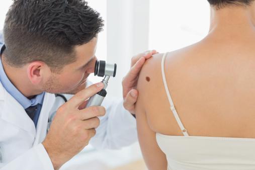 melanoma risks