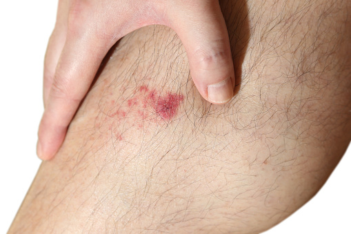 eHealth_July 6 2015_news_wound healing molecule