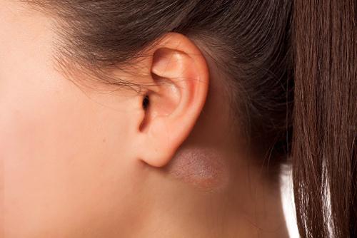 lump behind ear