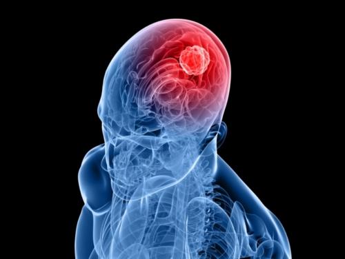 obesity and Brain Tumor