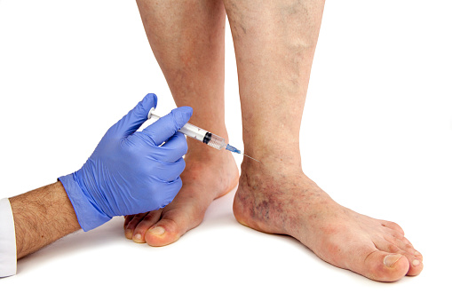 Management of diabetic foot ulcers - UpToDate