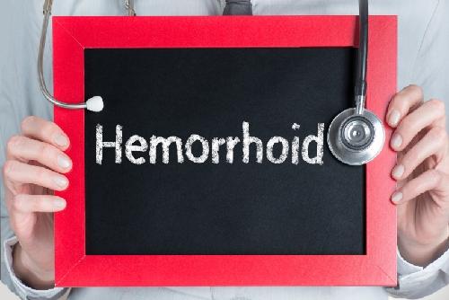 HowLongDoHemorrhoidsLast