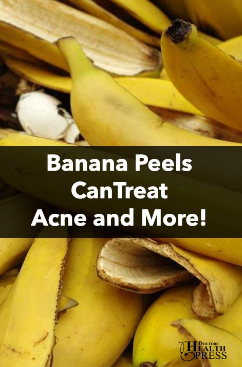 Banana peels acne