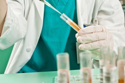 Prostate cancer and urine test