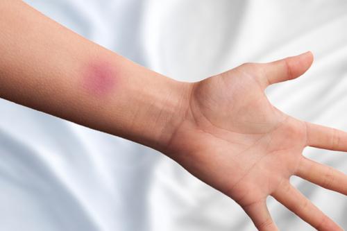 How Long Do Bruises Last?