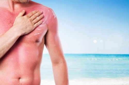 soothe sunburns