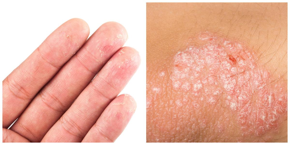 the difference between eczema and psoriasis, Skeleton