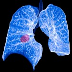 type of lung cancer