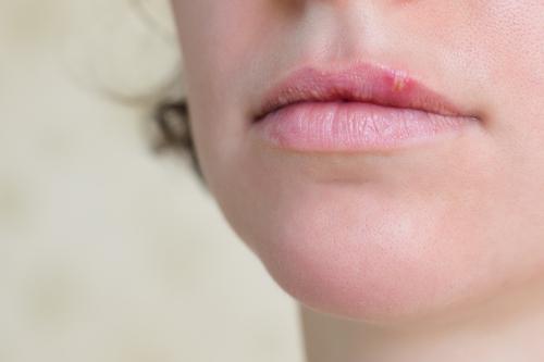 Bumps on Lips