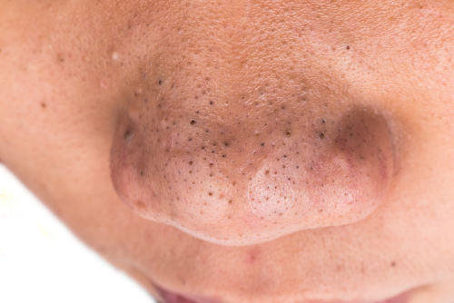 10 natural remedies to get rid of blackheads on the nose and causes, Skeleton