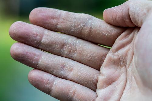 Scaly Skin