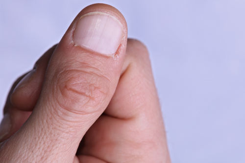 What causes weak, splitting nails? - Cynthia Bailey
