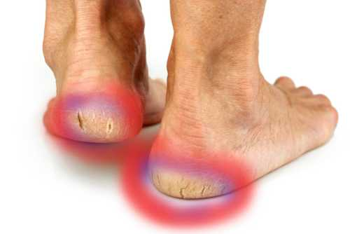 Natural Remedies For Dry Skin On Feet