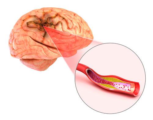 blood clots in brain