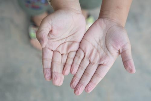 Pruney Fingers