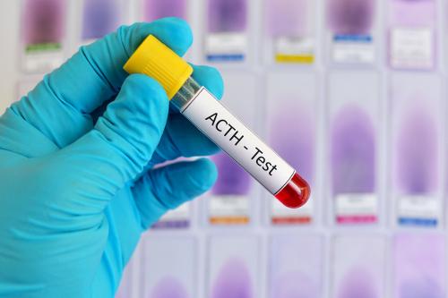 aspartam allergi symptom