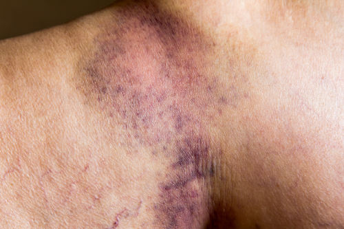 Unexplained Bruising
