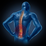 Chronic low back pain is a strain on patients.