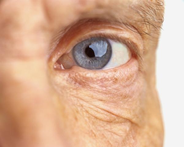 Carotenoids and Eye Health