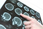 How Protein Levels Could Cause Parkinson's