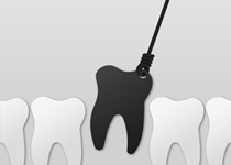 Root Canals May Cause Cancer
