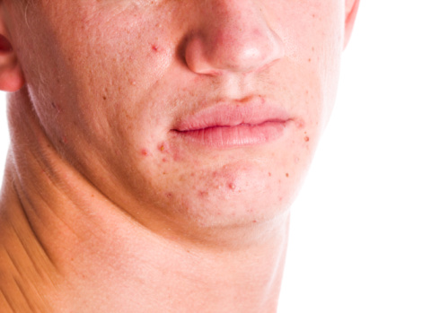 eHealth_June 26 2015_news_acne and vitamins