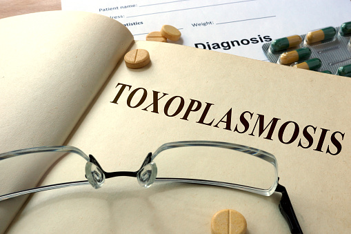 how to get rid of toxoplasma gondii
