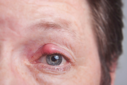 Home Remedies To Cure A Stye In The Eye