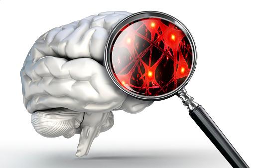 Alzheimer's Risk
