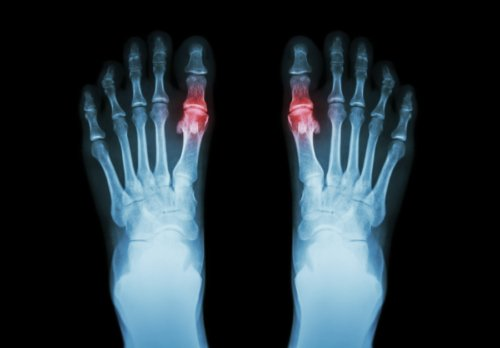 Arthritis in toes symptoms natural treatment for toe arthritis arthritis in toes solutioingenieria Image collections