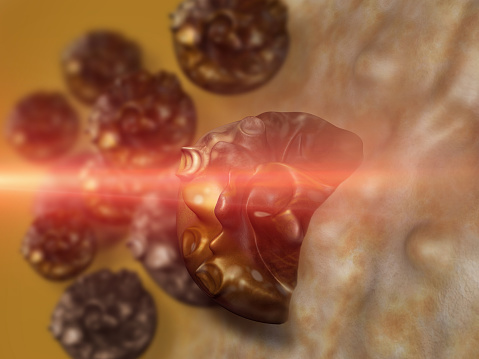 Cancer Cells Can Be Killed With Nanoparticle Therapy
