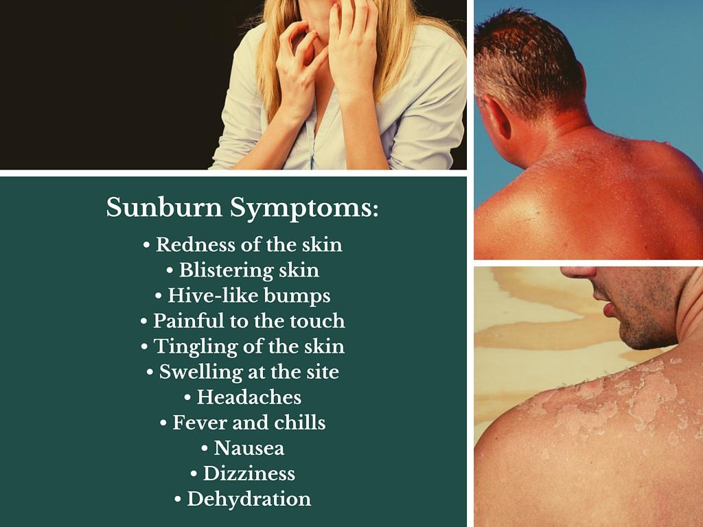 symptoms of sun poisoning
