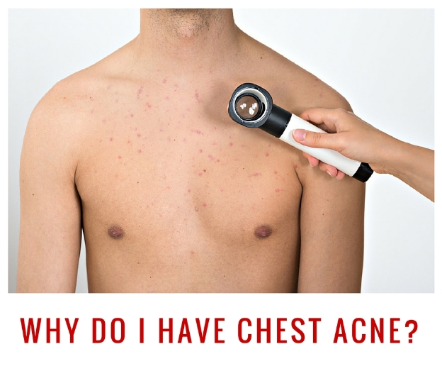 chest acne causes