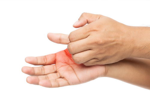 Athlete S Foot On Hands Causes Symptoms And Treatment
