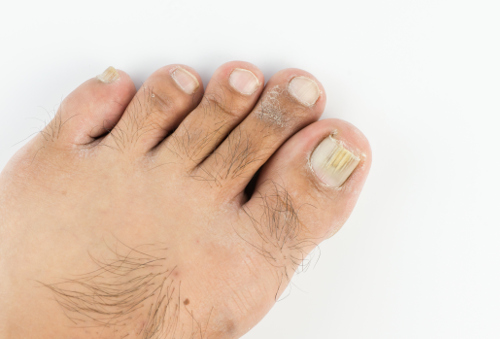 Thick Toenails: Symptoms, Causes, and Treatment