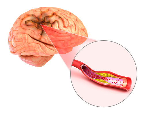 blood clots in brain