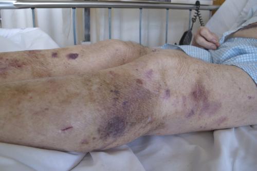 Bruising of Legs