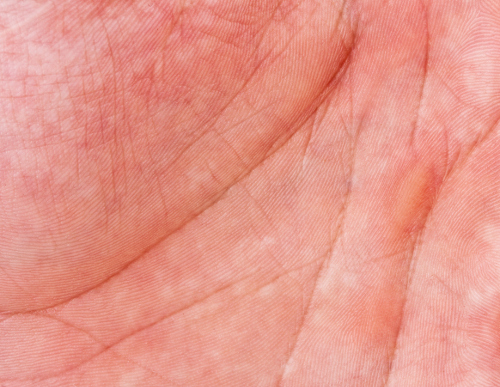 Mottled Skin (Livedo Reticularis) Symptoms, Causes, & Treatments