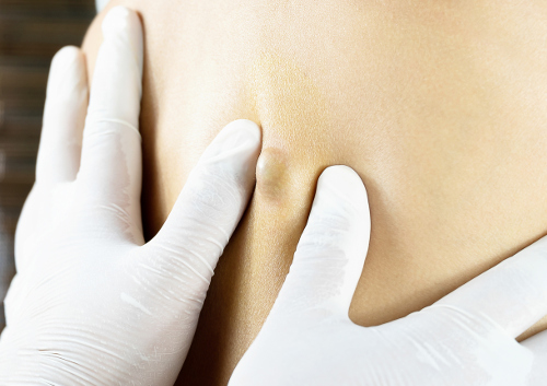 dermoid cyst