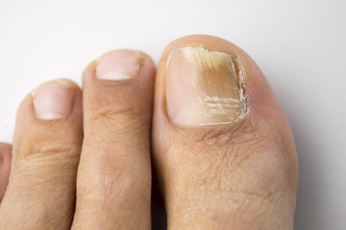 Yellow Toenails: Causes, Treatments, and Prevention Remedies